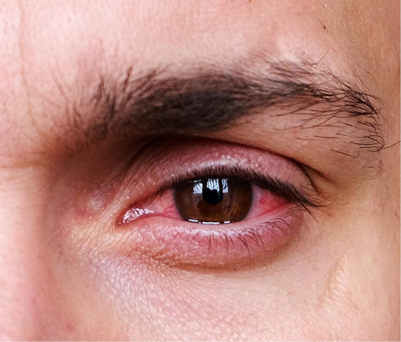 Silmä on punainen säteilyaltistuksen jälkeen.